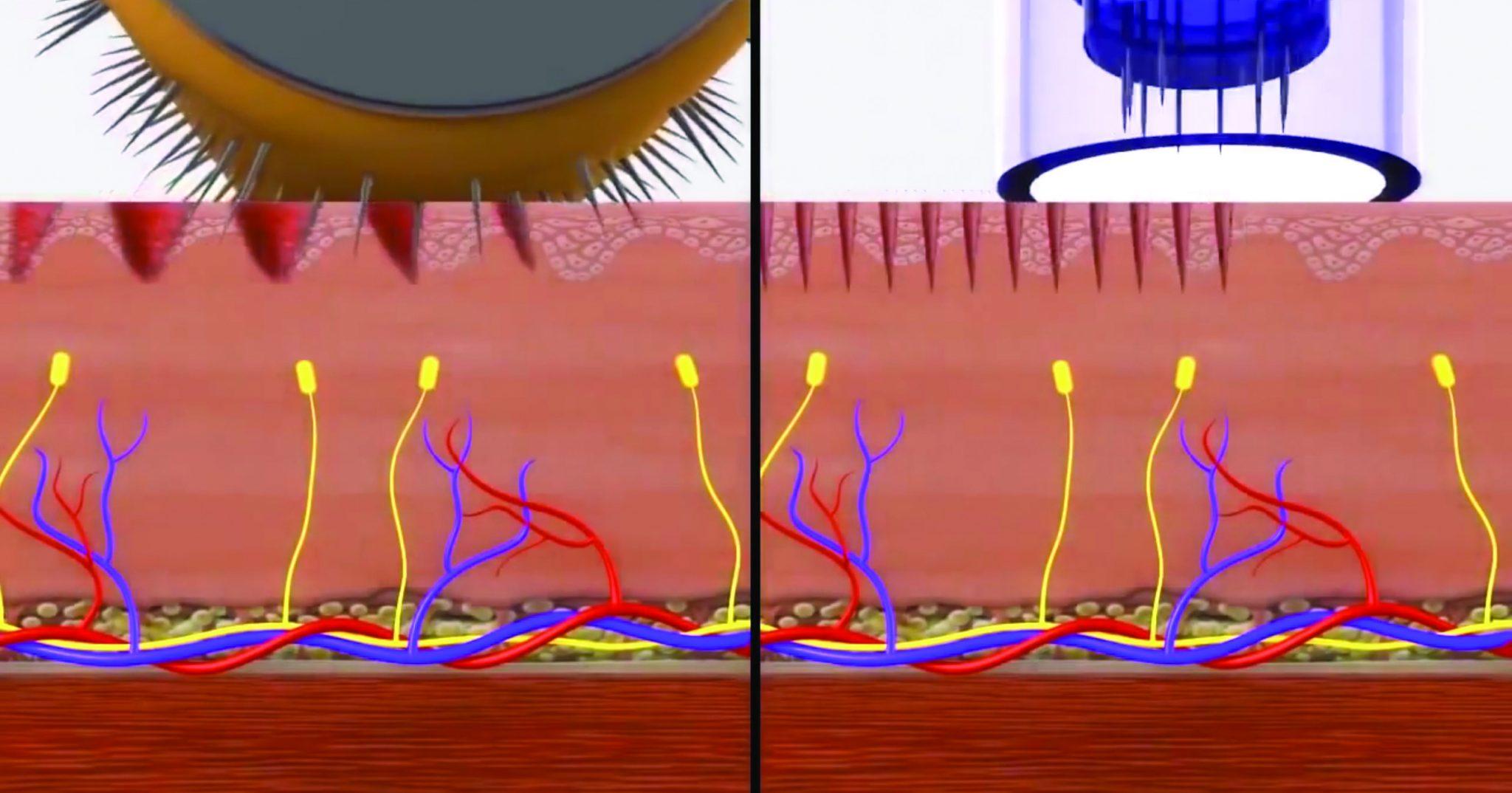Derma Roller v Dermapen 1